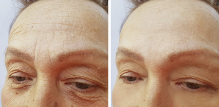 face woman elderly wrinkles before and after 免版税图像