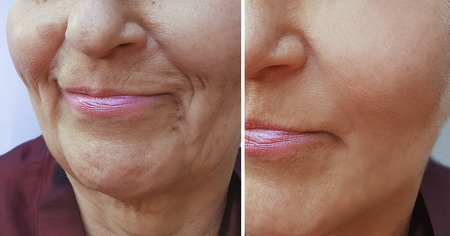 face of an elderly woman wrinkles before and after Stock fotó