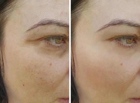 twarz kobiety zmarszczki przed i po