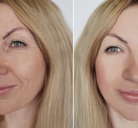 face girl wrinkles before and after cosmetic procedures