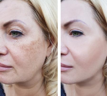 Mujer arrugas antes y después de la pigmentación. Foto de archivo