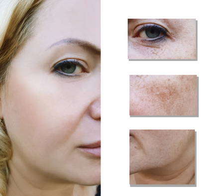 Woman wrinkles before and after pigmentation