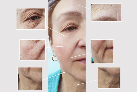 woman face wrinkles before and after procedures Banco de Imagens