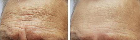 rughe del viso dell'uomo prima e dopo le procedure