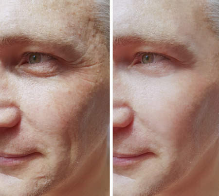 man wrinkles before and after procedures Stock fotó