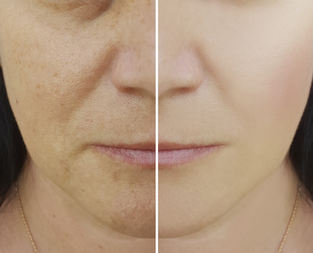 woman wrinkles on face before and after cosmetic procedures, pores, pigmentation Stock Photo
