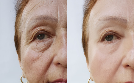 woman's wrinkles face before and after the procedures Stock fotó