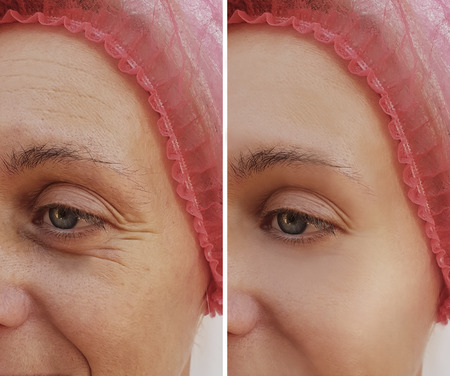 womans wrinkles face