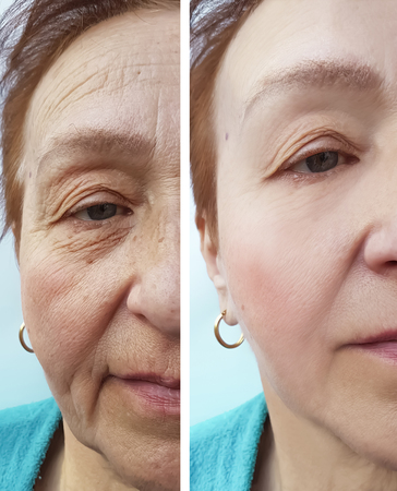 wrinkles elderly woman face before and after cosmetic procedures, therapy, anti-aging Zdjęcie Seryjne