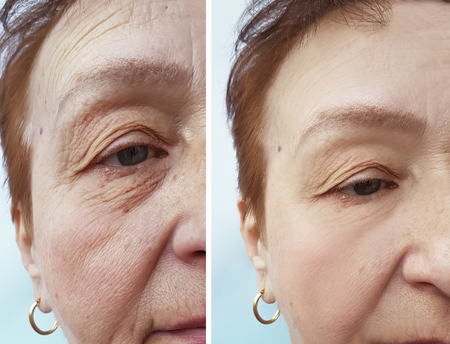 wrinkles elderly woman face before and after cosmetic procedures, therapy, anti-aging Foto de archivo