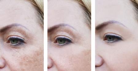 Woman wrinkles on face, pigmentation before and after procedures Stock Photo