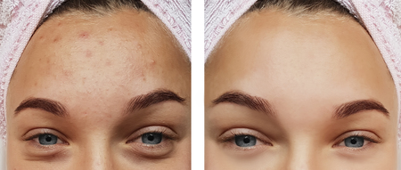 Beautiful eye girl treatment, before and after procedures