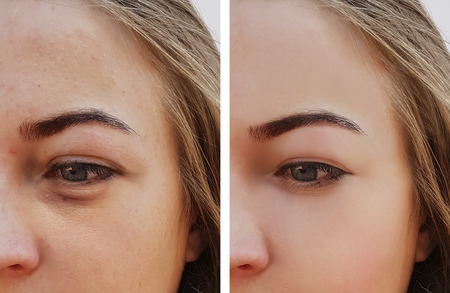 Eye swelling, wrinkles before and after cosmetic procedure Stockfoto