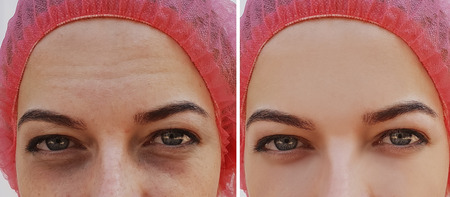 girl face bags under eyes wrinkles before and after