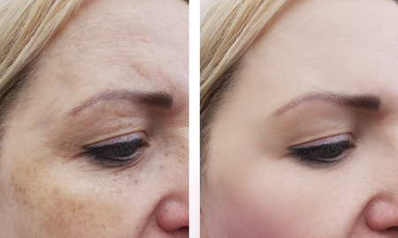 female eye wrinkles before and after treatments Stok Fotoğraf - 109278919