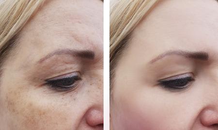 weibliche Augenfalten vor und nach der Behandlung