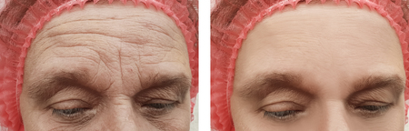wrinkles face elderly woman