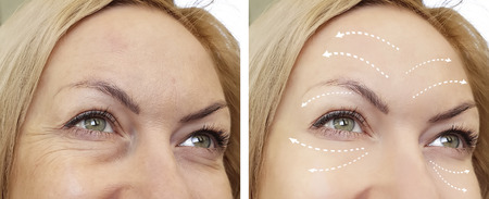 woman wrinkles before and after procedures