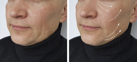 man wrinkles before and after procedures Stock Photo