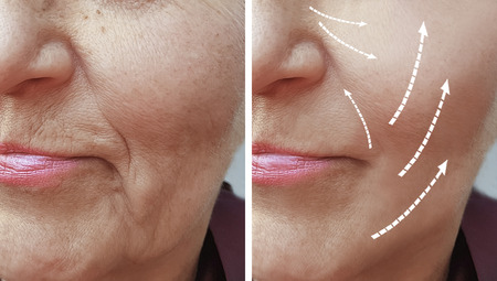 woman wrinkles before and after procedures 版權商用圖片 - 110449257