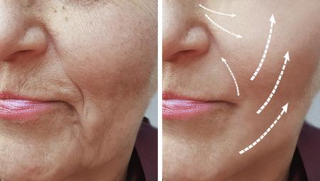 zmarszczki kobiece przed i po zabiegach Zdjęcie Seryjne