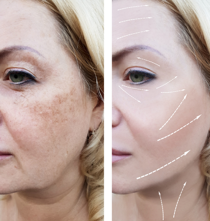 woman wrinkles face before and after procedures arrow