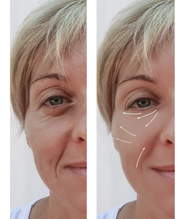 female facial wrinkles before and after cosmetic procedures, arrow 스톡 콘텐츠
