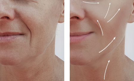 female facial wrinkles before and after cosmetic procedures, arrow Stok Fotoğraf