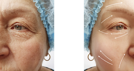wrinkles before and after procedures arrow