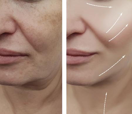 femme face aux rides avant et après les procédures, flèche Banque d'images