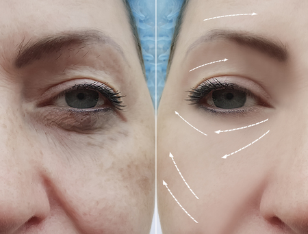 woman face wrinkles before and after procedures, arrow