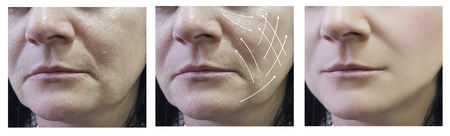 woman face wrinkles before and after procedures 写真素材