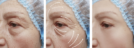 face wrinkles before and after correction
