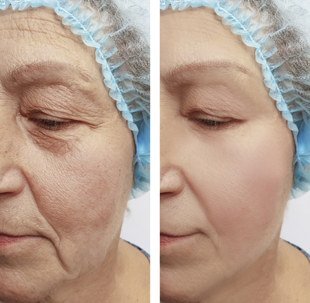 wrinkles before and after procedures