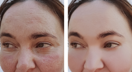 woman wrinkles face before and after procedures Foto de archivo