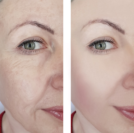 woman wrinkles before and after treatments