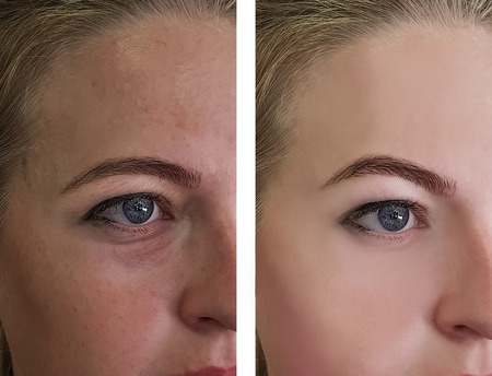 girl wrinkles eyes before and after treatments
