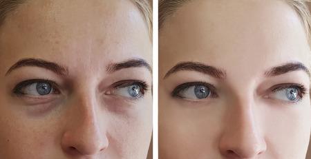 la fille plisse les yeux avant et après les procédures