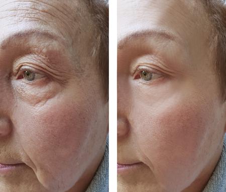 elderly woman facial wrinkles