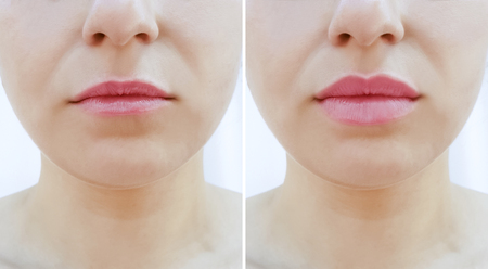 girl lips before and after augmentation Standard-Bild