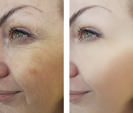 girl wrinkles before and after the procedures