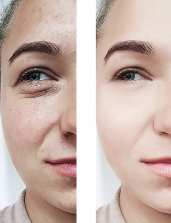 girl wrinkles eyes before and after procedures