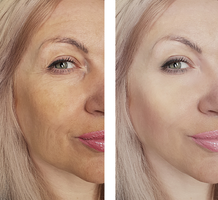 woman's wrinkles face before and after the procedures 写真素材 - 115380202