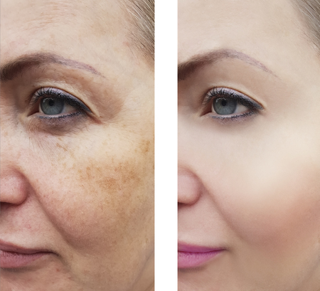 wrinkles woman face before and after procedures