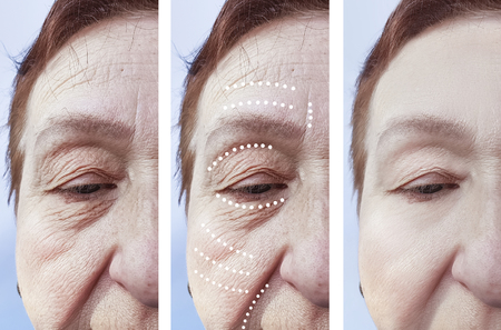 female wrinkles before and after the procedures Imagens