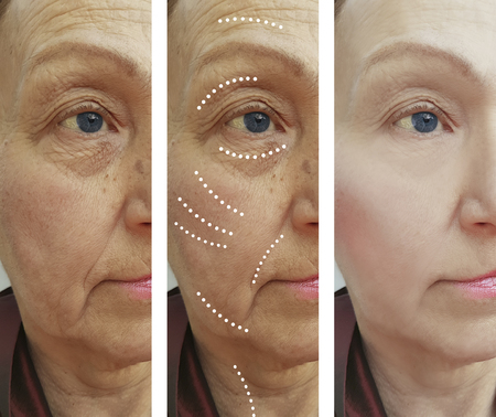 female wrinkles before and after the procedures Фото со стока