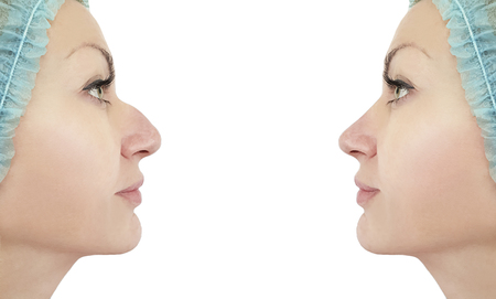 woman nose correction before and after procedures, hump