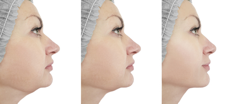 woman chin before and after procedures Archivio Fotografico