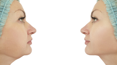 woman chin before and after procedures Фото со стока