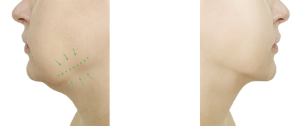 woman double chin before and after procedures, oval retouching